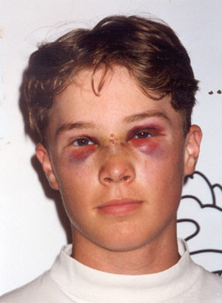 A photo of Tyler, after having been struck between the eyes with a baseball